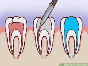 Broken tooth repair emergency
